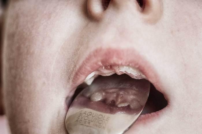 Avoir la dent... ou pas.