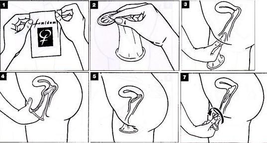 Cara memakai kondom wanita