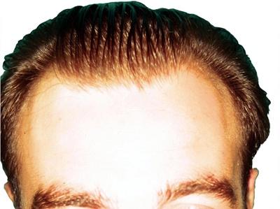 ¿A qué edad se puede realizar el transplante de pelo? | Dr. Córdoba