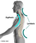 Spine 3 Blue Lines