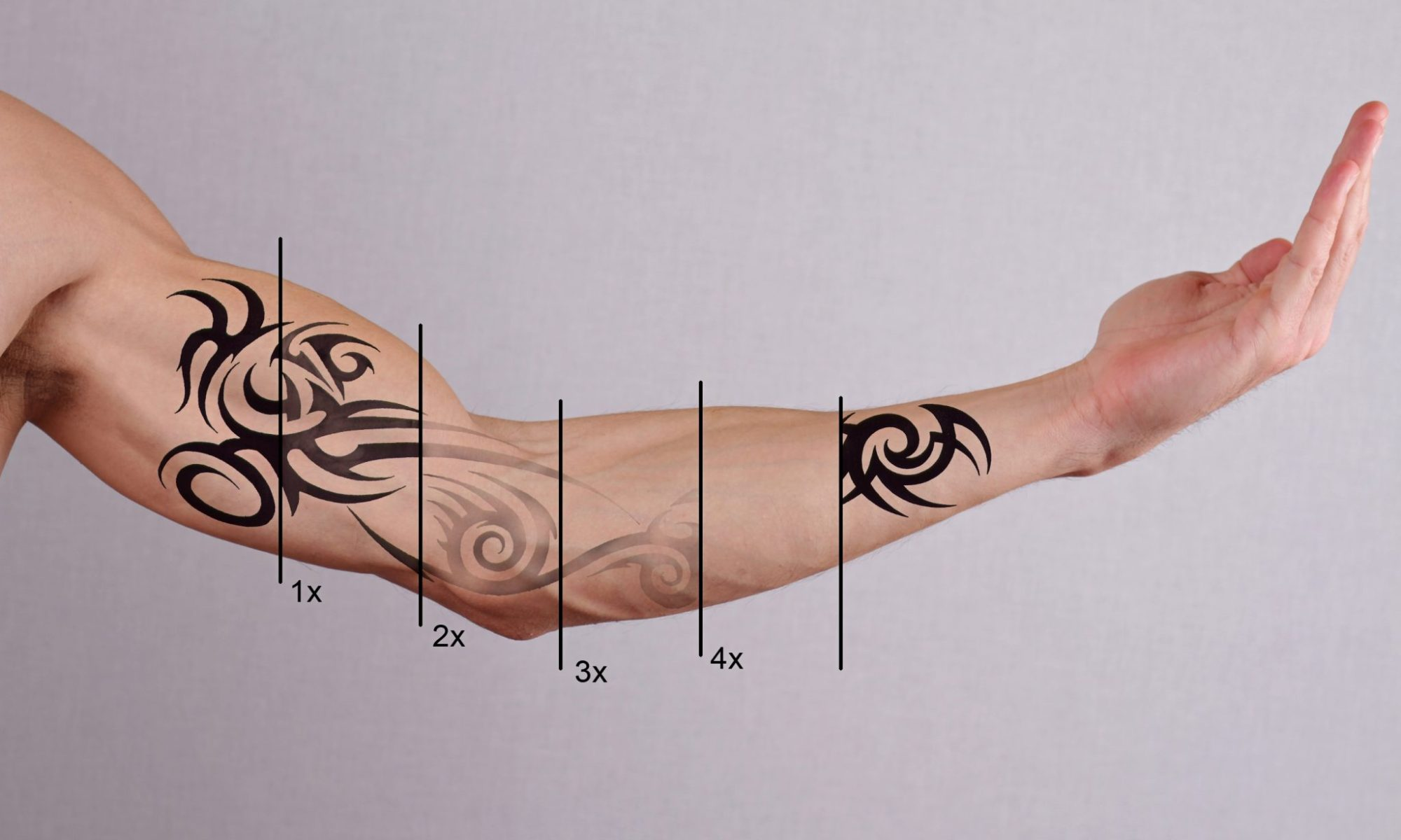 Laser Tattoo Removal in Englewood, CO