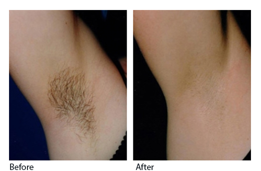 Laser-hair-removal-before-and-after-2