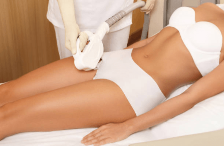 Laser device for hair removal