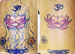 Colour tattoo laser removal before and after ink doubt