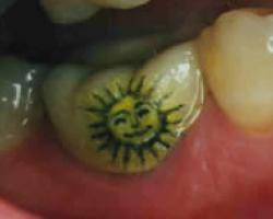 Tooth Tattoo