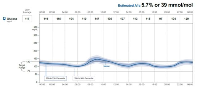 Figure 3. Ambulatory Glucose Profile of a Patient: the 14 day CGM data is Collapsed to Look Like a Model 24-h Graph