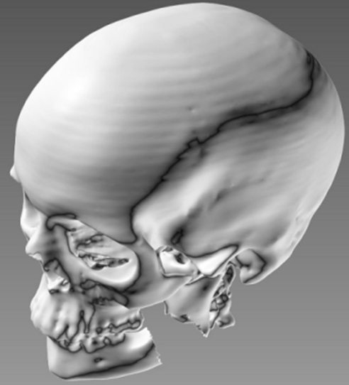 Data from a human CT scan shows a defect in a segment of jaw bone.