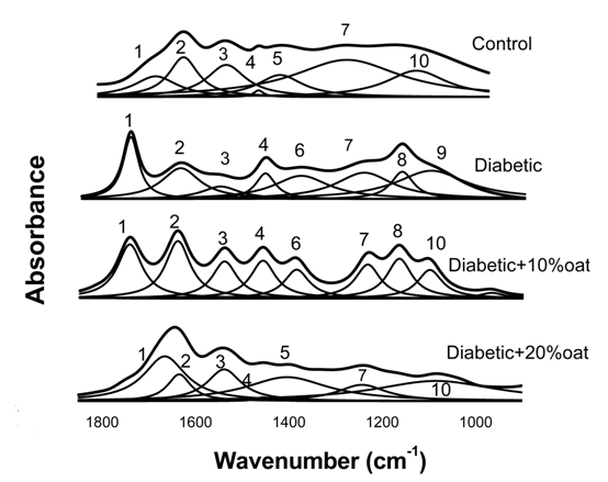 FTIR ANALYSIS FOR RETINA ASSOCIATED WITH DIABETIC CHANGES