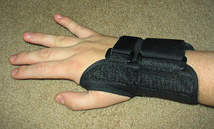 A splint can keep the wrist straight.