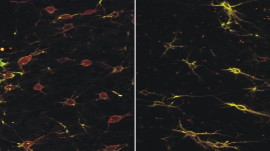 Brain slice of the frontal cortex of a rat showing nerve cells before and after treatment with the iTBS protocol