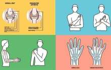 Back to Google News'Data' glove aid to arthritis care