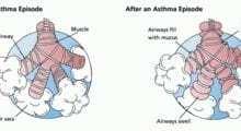 Bitter Taste May Battle Asthma