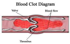300px-Blood_clot_diagram