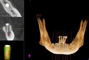 300px-CT_Scan_for_Dental_Implants