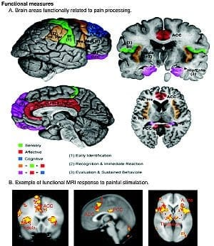 300px-Schematic_of_cortical_areas_involved_with_pain_processing_and_fMRI