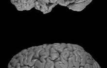 Drawing closer to Alzheimer's magic bullet?