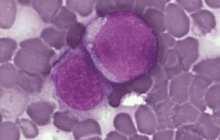 Virus-derived particles target blood cancer