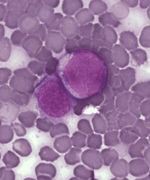 Virus-derived particles target blood cancer
