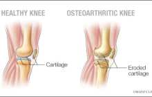 Bisphosphonates could offer effective pain relief in osteoarthritis