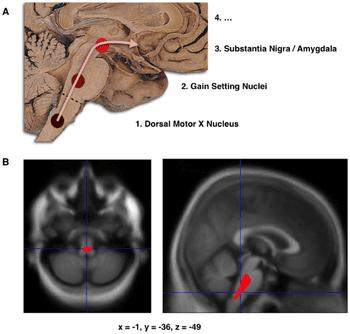 Parkinson's disease (Photo credit: Wikipedia)