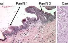 Vaccine'Reprograms' Pancreatic Cancers to Respond to Immunotherapy