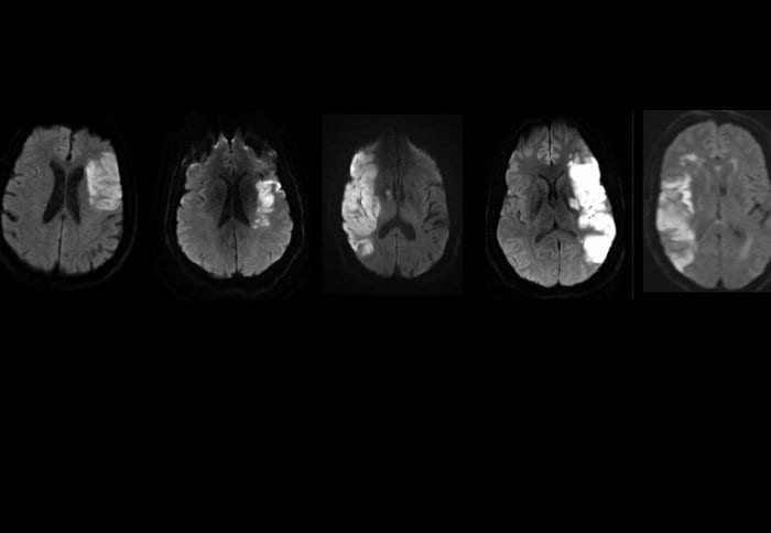 MRI scans showing brain damage in the stroke patients before treatment. Source: Stem Cells Translational Medicine.