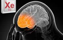 Xenon gas protects the brain after head injury