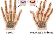 Breakthrough arthritis treatment developed by University of Queensland researchers