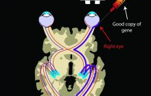 Vision-Restoring Gene Therapy Also Strengthens Visual Processing Pathways in Brain