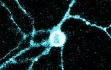 Optogenetics: Revolutionizing a revolutionary technology
