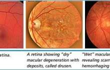 Stem cell op could bring back sight for millions: AMD Breakthrough