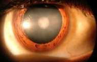 Eye Drops Could Clear Up Cataracts Using Newly Identified Chemical
