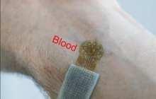 A wearable blood-flow sensor for vascular disease monitoring