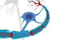 Personalised stem cell treatment may offer relief for progressive MS