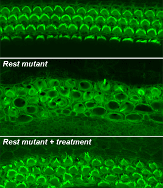 A new drug therapy partially restores hearing - in mice