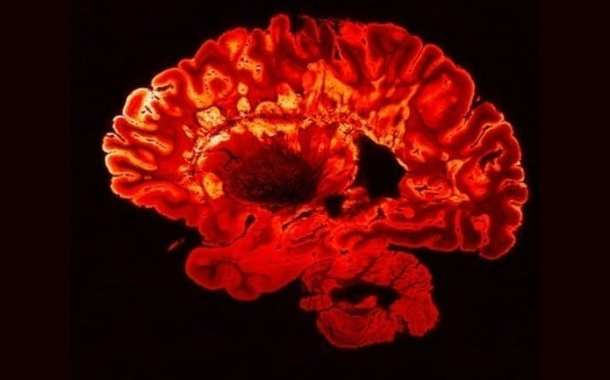 Gut immune cells can reduce brain inflammation in people with multiple sclerosis