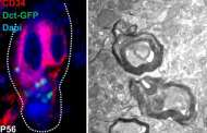 Could skin-related stem cells help in treating neurodegenerative diseases?