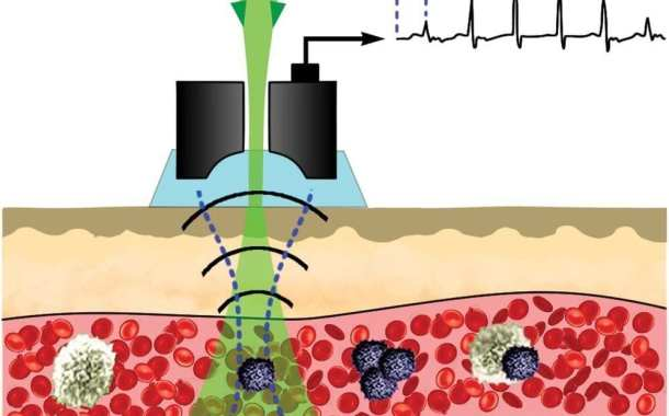 The ability to detect and treat melanoma in its earliest stages