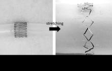 Monitoring the healing of cerebral aneurysms with a stretchable wireless monitor in the brain