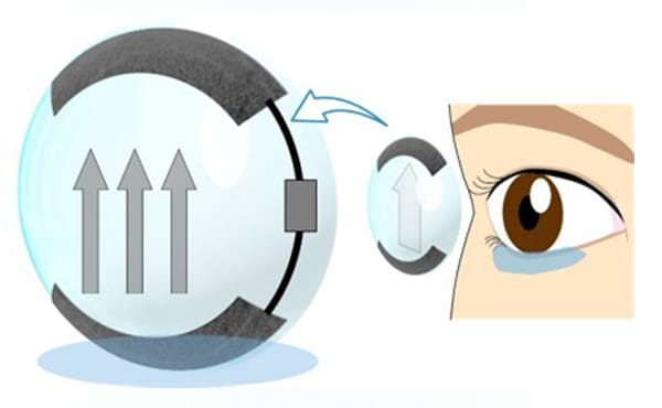 Illustration of a self-moisturising soft contact lens that supplies tears via electroosmotic flow from the temporary tear reservoir behind the lower eyelid via Tohoku University