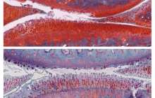 A combination of two previously studied osteoarthritis drugs reverses arthritis in rats