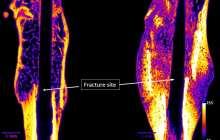 Clinical trials start for a novel injectable drug to heal broken bones faster and strengthen weak bones