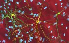 Huntington's disease can be detected 24 years before clinical symptoms show
