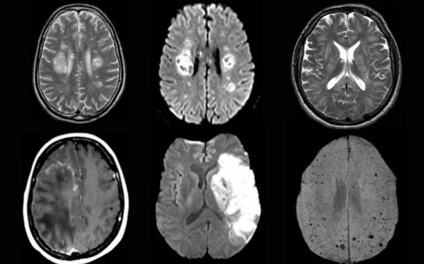 Strokes, delirium and other brain complications are reported from Covid-19 infections