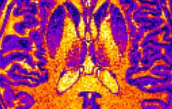 Can a brain scan and computer algorithm help to diagnose mental health conditions?