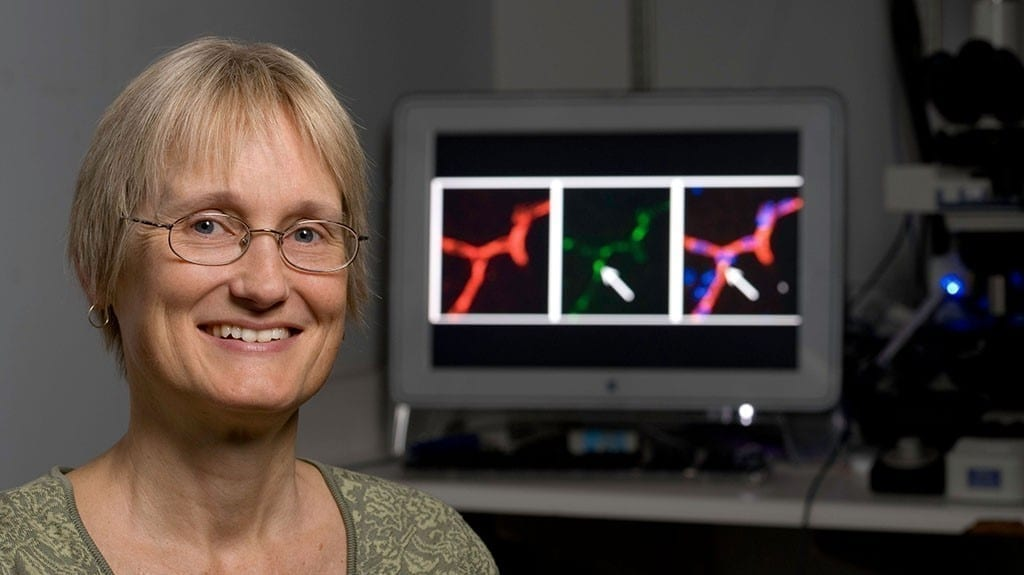 Katrin Andreasson is the senior author of a study that identifies a particular set of immune cells as a key driver of mental aging. Steve Fisch