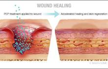 Chronic wounds in preclinical models healed with normal scar-free skin after treatment with a new acellular product