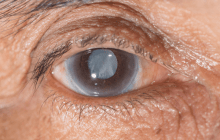 Drug therapy as an alternative to surgery for cataracts?