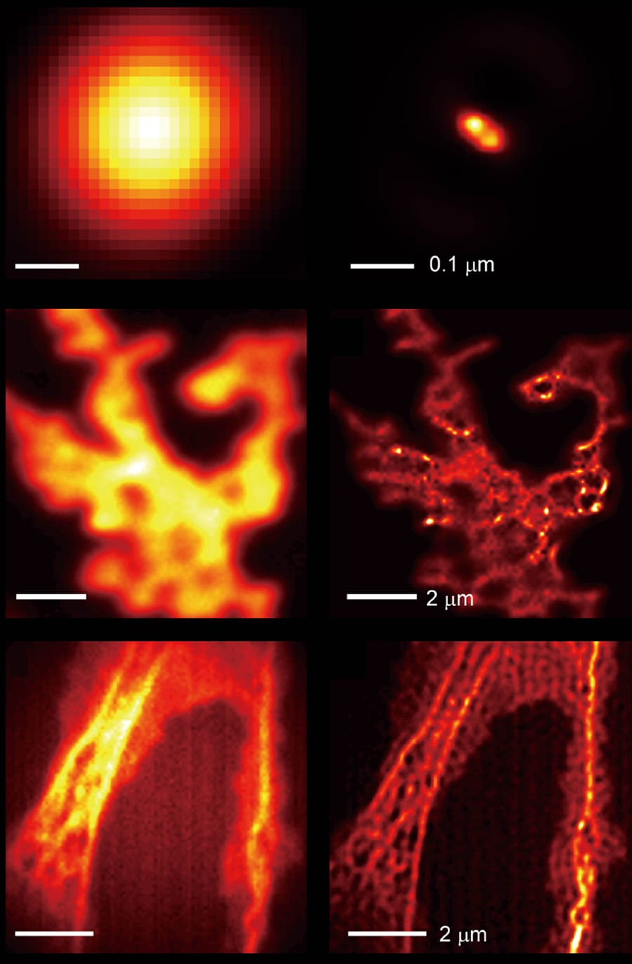 Comparison of images taken by a light microscope without the hyperbolic metamaterial (left column) and with the hyperbolic metamaterial (right column): two close fluorescent beads (top row), quantum dots (middle row), and actin filaments in Cos-7 cells (bottom row). Adapted from Nature Communications