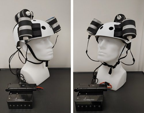 Device helmet with 3 oncoscillators attached. They are connected to a controller box powered by a rechargeable battery.